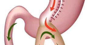 mini-gastric